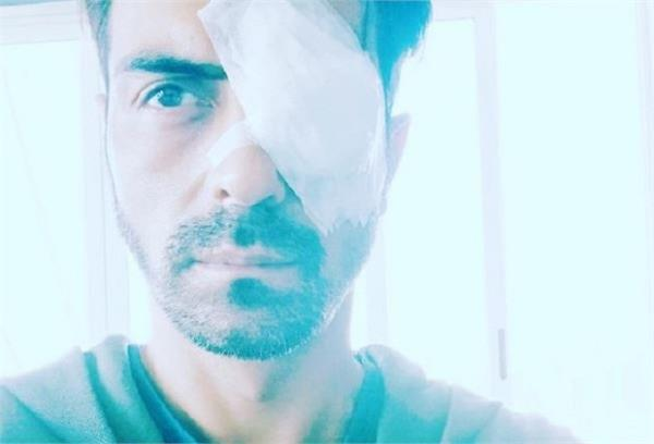 actor arjun rampal suffers eye injury