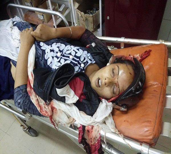 road accident girl died