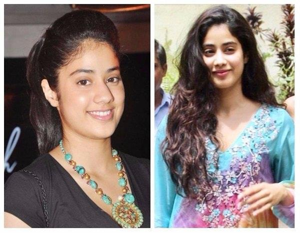 jhanvi kapoor got facial surgery