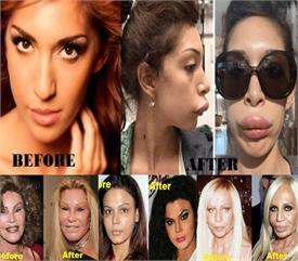 10 एक्ट्रेसेस जिन्होंने खूबसूरत दिखने के चक्कर में बिगाड़ लिया चेहरा, दिखती है इतनी भयानक