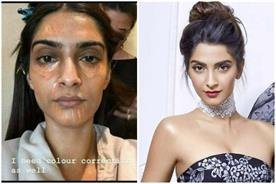 sonam kapoor bursts all the beauty myths of celebrities