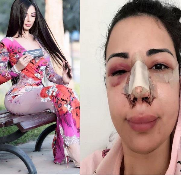 kim kardashian lookalike jennifer pamplona reveals latest surgery