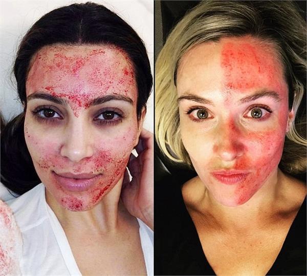 what is a vampire facial everything to know about the skin treatment