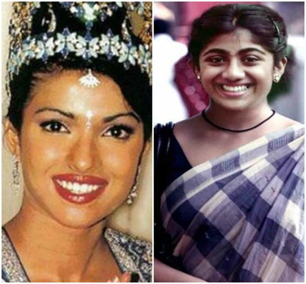 10 bollywood star made plastic surgery