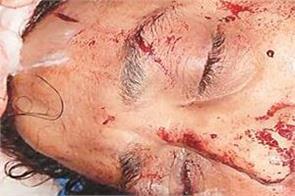 shashi sharma deadly attacked