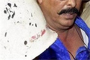 mla anant singh sent judicial custody