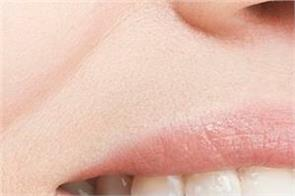 winter cracking lips use these ways benefit