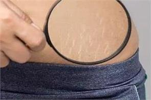 disappear with homemade oil  not with expensive creams  stretch marks