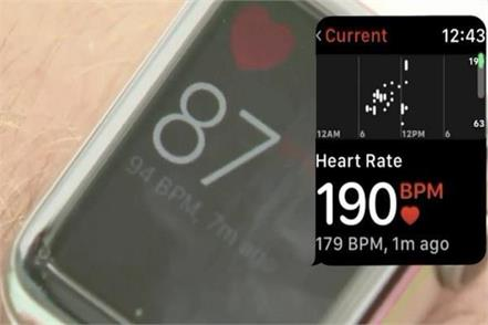 apple watch for detecting svt heart rhythm