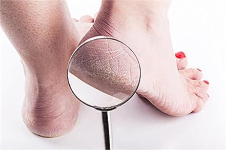beauty tips  cracked heels  these home remedies will cure oot problems
