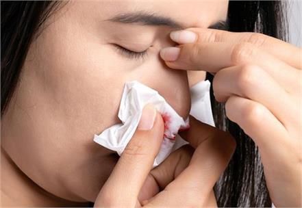 summer  nose bleeding  problems  home remedies